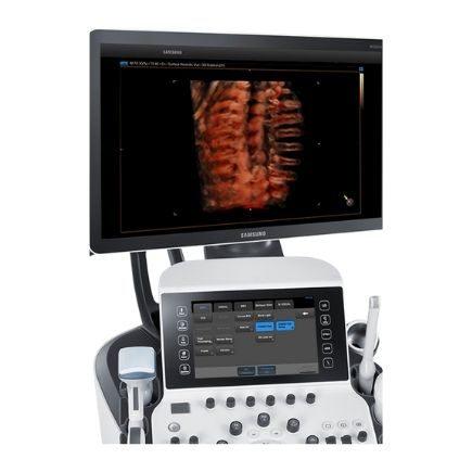 Produktansicht Ultraschallgerät SAMSUNG WS80A