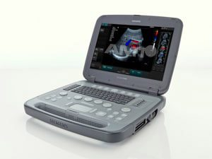 Produktansicht portables Ultraschallgerät SIEMENS ACUSON P500 FROSK Edition von AMT Abken Medizintechnik bei Hannover