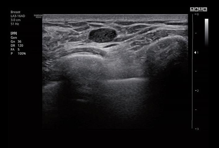 SAMSUNG HS40 Untersuchungsabbildung der Brust von AMT Abken Medizintechnik in Wunstorf