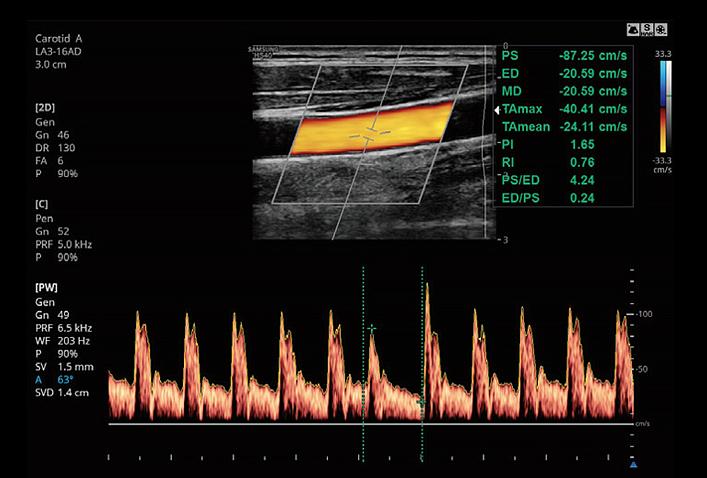 SAMSUNG HS40 Untersuchungsabbildung Carotis mit PW Doppler von AMT Abken Medizintechnik in Wunstorf