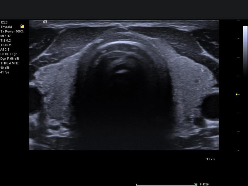 AMT Abken in Norderstedt bei Hamburg - Ultraschallbild Brust mit SIEMENS ACUSON Juniper