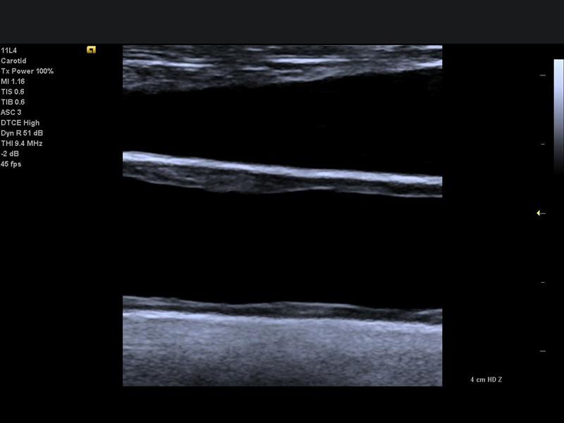 ecr_vascular_demo_juniper-carotid_0391