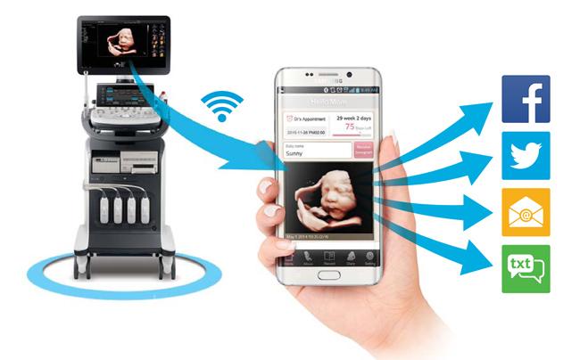 SAMSUNG HS40 Hello Mom APP zur Bilddatenübertragung von AMT Abken Medizintechnik in Wunstorf