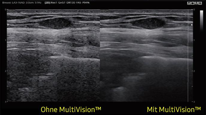 SAMSUNG HS40 mit Bildverbesserungssoftware MultiVision von AMT Abken Medizintechnik in Wunstorf