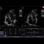 AMT Abken in Norderstedt bei Hamburg - Abbildung Ultraschallbild Herz mit SIEMENS ACUSON Juniper