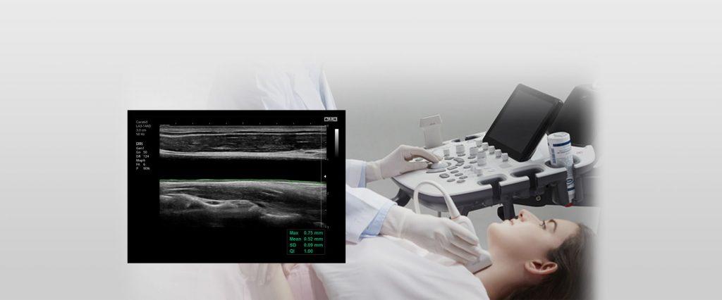 AMT Abken Medizintechnik GmbH in Wunstorf bei Hannover - Samsung HS60 AutoIMT+