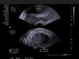 Simultane bi-plane Ansicht untereinander mit Mittellinie unter Verwendung der BP10-3 Sonde - AMT Abken Medizintechnik in Wunstorf bei Hannover