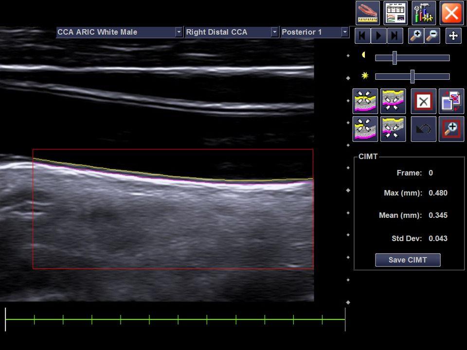 Abbildung IMT der Arteria carotis communis - AMT Abken Medizintechnik in Wunstorf bei Hannover