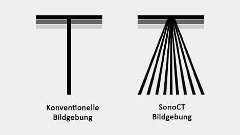 Abbildung SonoCT Echtzeit - AMT Abken Medizintechnik in Norderstedt bei Hamburg