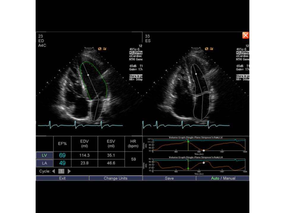 Syngo Auto Left Heart - AMT Abken Medizintechnik in Wunstorf bei Hannover