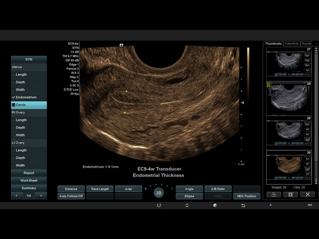 EC9-4w Transducer Endometrial Thickness - Siemens ACUSON X600 - AMT Abken Medizintechnik in Wunstorf bei Hannover
