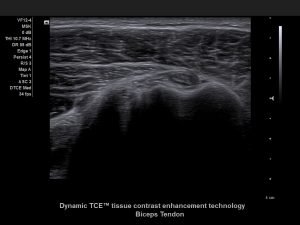 Ultraschallbild Dynamic TCE™ Tissue contrast enhancemet technology - Siemens ACUSON X600™ - AMT Abken Medizintechnik Wunstorf bei Hannover