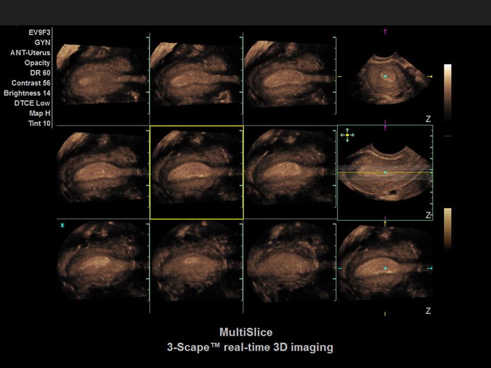 Abbildung Ultraschallbild Multislice 3 scape real time - Siemens ACUSON X600™ - AMT Abken Medizintechnik Wunstorf bei Hannover