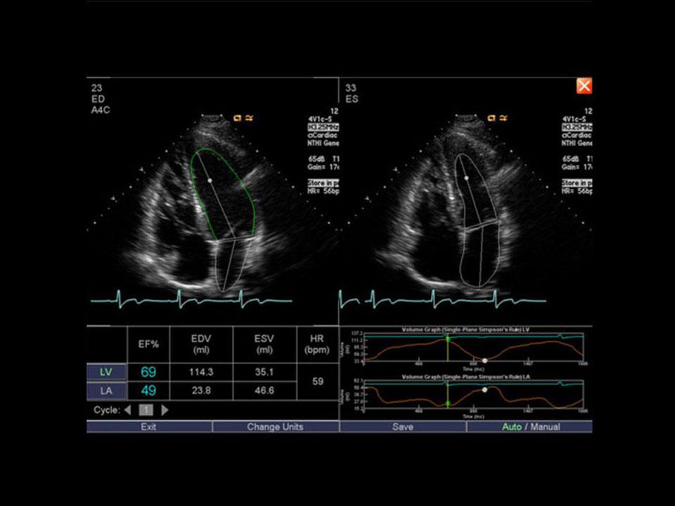 Abbildung Ultraschallbild Siemens ACUSON X600™ Syngo auto left heart - AMT Abken Medizintechnik Wunstorf bei Hannover
