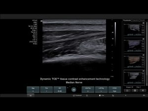 Ultraschallbild Siemens Acuson X700™ - Dynamic TCE™ tissue contrast enhancement technology - AMT Abken Medizintechnik in Wunstorf bei Hannover