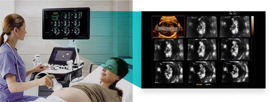 Samsung H60 - 3DXI