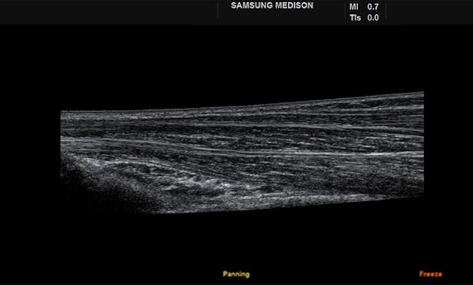 Samsung H60 - Panoramic